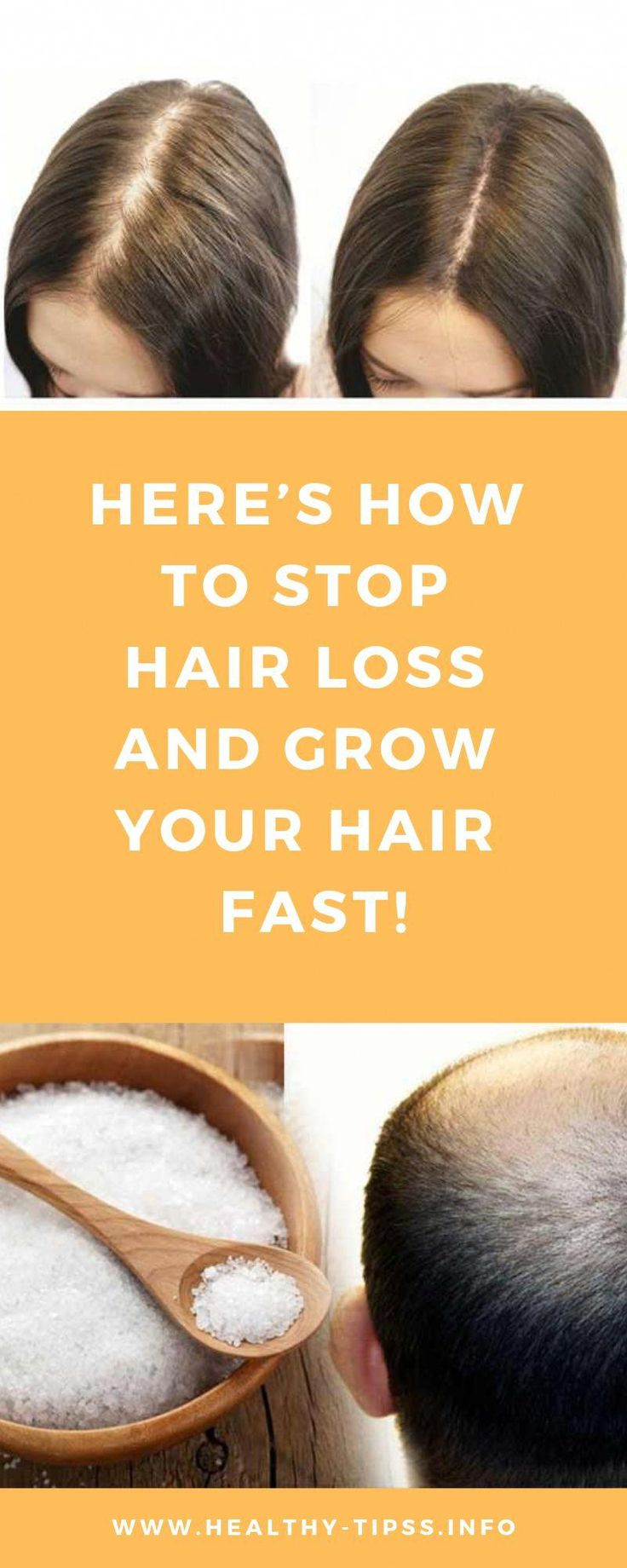 Hair loss is a normal process if it is in the normal range