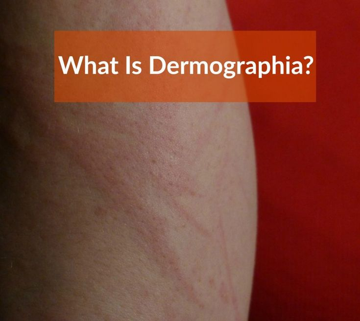 Dermographia (Dermographism- Causes, Symptoms, Treatment) The clinical term of dermographia is dermatographic urticaria but it is commonly known as skin writing.  As the name suggests, it is a type of skin disorder. While most sufferers do not experience pain, the commonly experienced symptoms can often be a nuisance.  Understanding this condition comprehensively can go a long way in efforts to manage it.