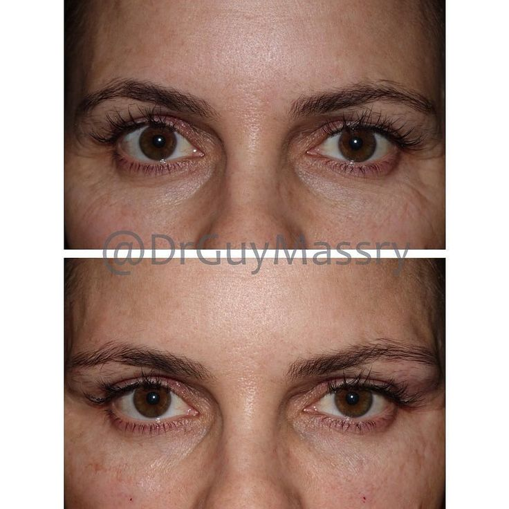 Patients always ask me what they will look like immediately after filler injections under the eyes... This patient's after photo is just moments after extensive filler injections. First you can see that the results are immediate - volume has been restored under the eyes and she looks rejuvenated! Additionally you can see that there are hardly any signs of the injections. She went back to work right after her filler treatment! #eyelidexpert #plasticsurgery #eyes #fillers #beforeandafter…