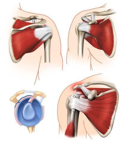 Desgarro o rotura del manguito rotador del hombro. Causas, síntomas y tratamiento de fisioterapia