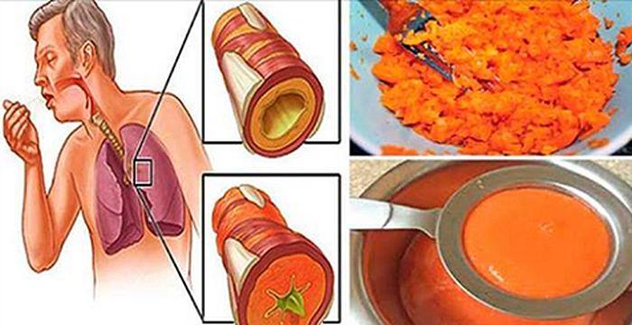 Viejo Remedio para sacar flemas, quitar la tos, gripe y limpiar los pulmones! - Medicina En Tu Hogar