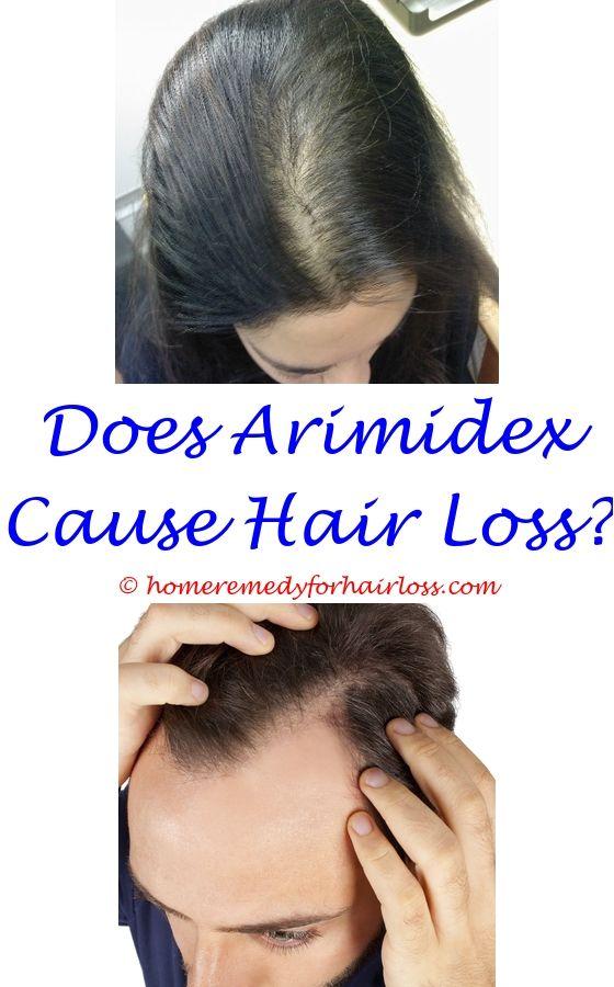 feline cat hair loss - hair loss system reviews.healing crystals for hair loss topotecan hair loss organic shampoo to stop hair loss 9123255920