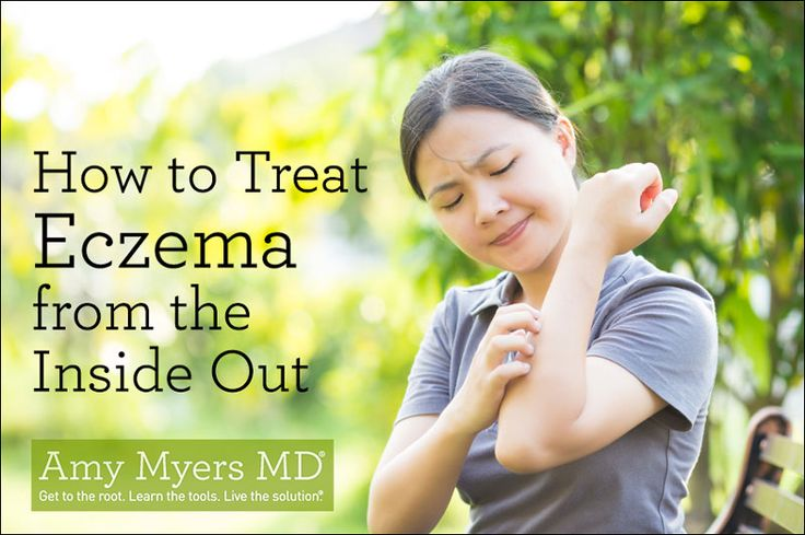 Do you suffer from eczema? The key to healing and reversing eczema permanently is to treat it from the inside out!