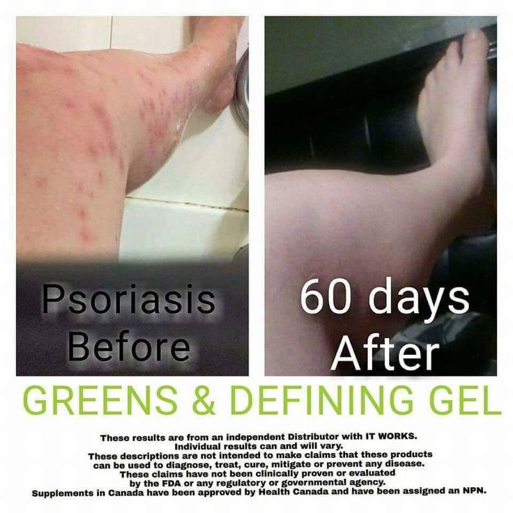 90 Day Challenge on Defining Gel & Greens! What more could you ask for? Are you ready to be healthy? I am looking for 5 new skeptics to take before & after pictures for my portfolio! www.wrapswithmarian.com #defininggel #liquidgoldinabottle #Greens #alkalize #detoxify #probiotic #teamberry #TeamOrange