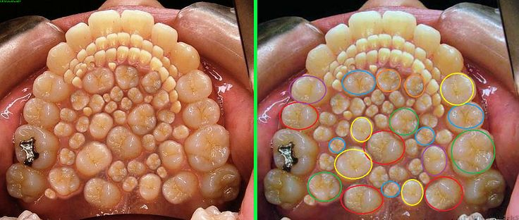 Fake - Hyperdontia - There is a real condition called ...