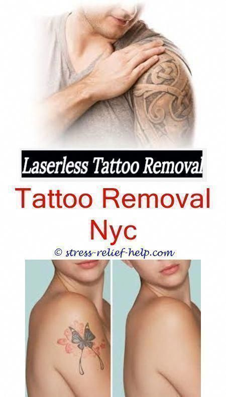 tattoo cover up vanish tattoo removal - extreme tattoo removal ...