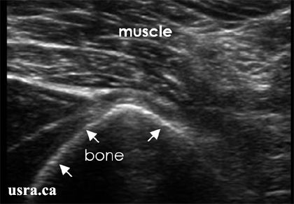 The velocity of ultrasound in bone is 4080 m/s, in contrast to muscle where it is 1568 m/s. The high acoustic impedance of bone attenuates the energy carried in the ultrasound signal.