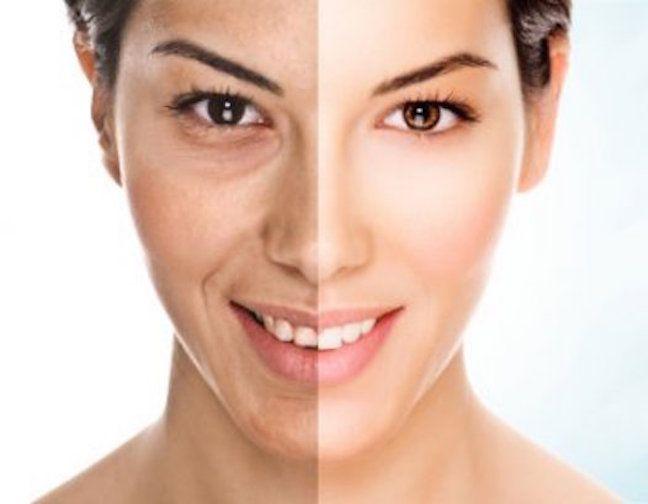 Las manchas faciales son más comunes de lo que uno quisiera. Muchas mujeres sufren este problema que no es tán fácil de resolver. Una excelente alternativa para elimarlas es usando algo tan comùn y económico como el agua oxigenada, también conocida como peróxido de hidrógeno. Hay que asegurarse de que sea la del tipo líquido, …