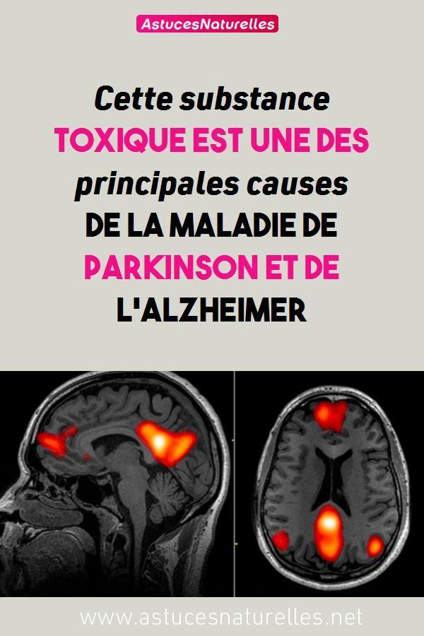 Comment Ne Pas Avoir Alzheimer