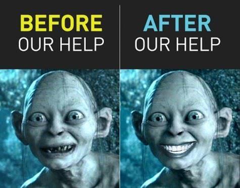 before and after Bonita Del rey dental care