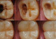 5 szybkich kroków do uzdrowienia zębów i naprawy ich ubytków. To prostsze niż myślisz!