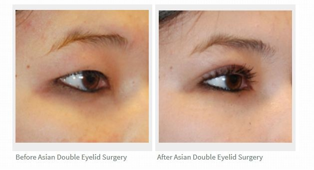 This Is A Before And After Of A Asian Double Eyelid Crese