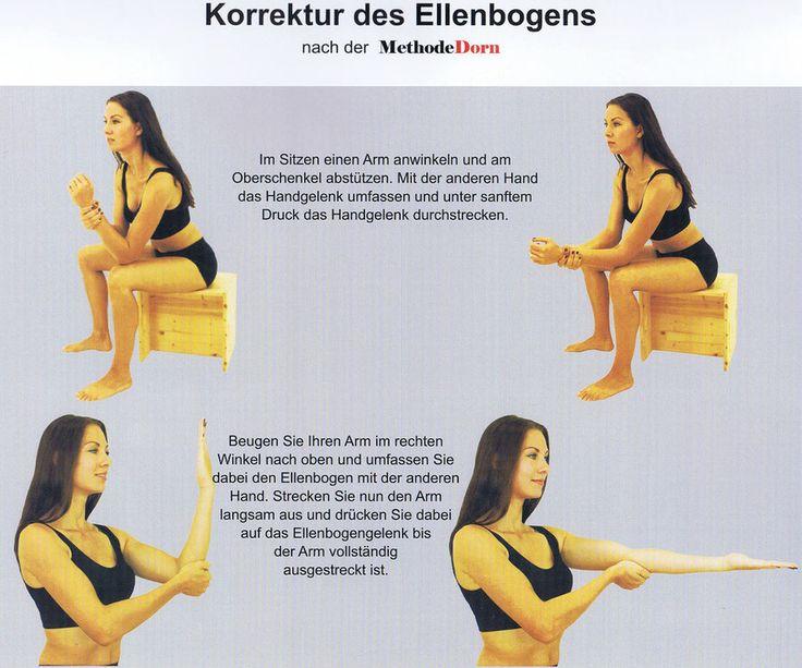 Korrektur des Ellenbogens nach der Methode Dorn