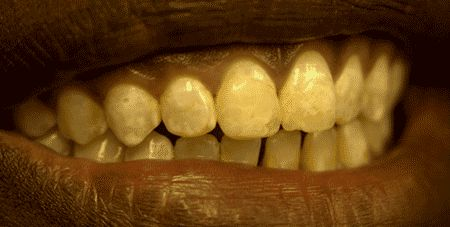 Photography by Hardy Limeback, PhD, DDS