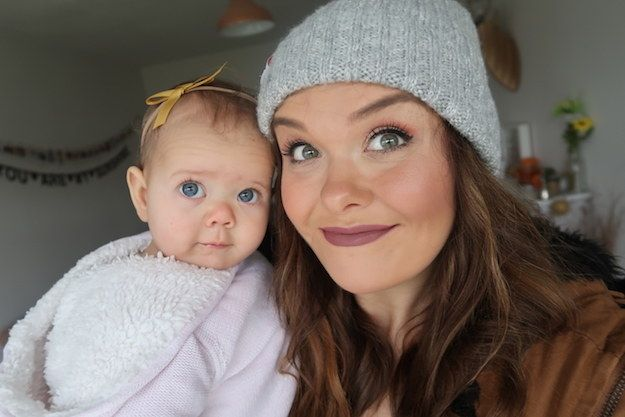 7 Things I Learned When My Daughter Was Born With A Cleft Palate #timbeta #sdv #betaajudabeta
