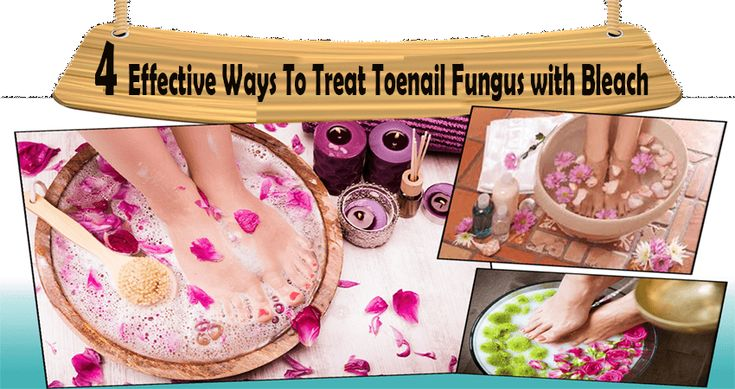 how to use bleach to get rid of toenail fungus