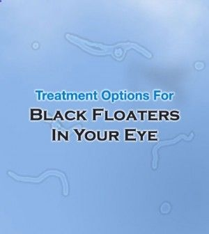 #Treatment Options For Black #Floaters In Your #Eye - #BlackFloatersInYourEye #EyeFloaters #BlackFloaters #FloatersInEye