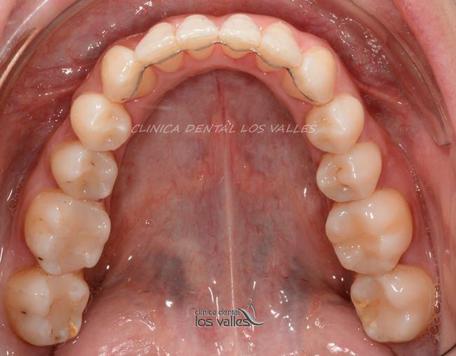 Caso clínico de éxito con ortodoncia Lingual Incognito para tratar la mordida y el apiñamiento por nuestros expertos.