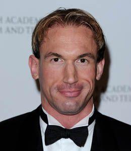 Christian Jessen boyfriend, partner, gay, married, hair transplant