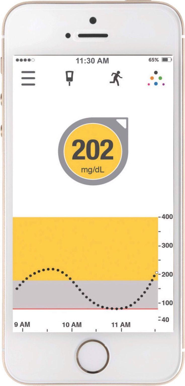Diabetes ist eine der grössten globalen Gesundheitsgefahren des 21. Jahrhunderts. Das Diabetes-Management-Unternehmen Dexcom bietet Technologien zur kontinuierlichen Glukosemessung (CGM) für Menschen mit Diabetes und erweitert nun mit einer Niederlassung in Horw (LU) den Direktvertrieb.