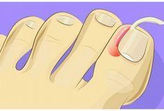 Plus besoin de se faire opérer pour soigner un ongle incarné ! On vous dit tout: