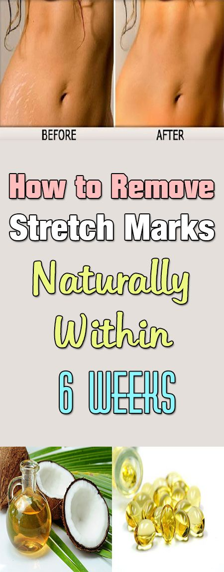 How to Remove Stretch Marks Naturally Within 6 Weeks Condition of the skin characterized with tearing of the skin's middle layer with profounder skin layers showing on the surface is called a stretch mark.