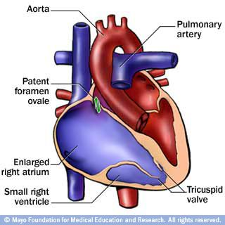 Image of heart with Ebstein's anomaly