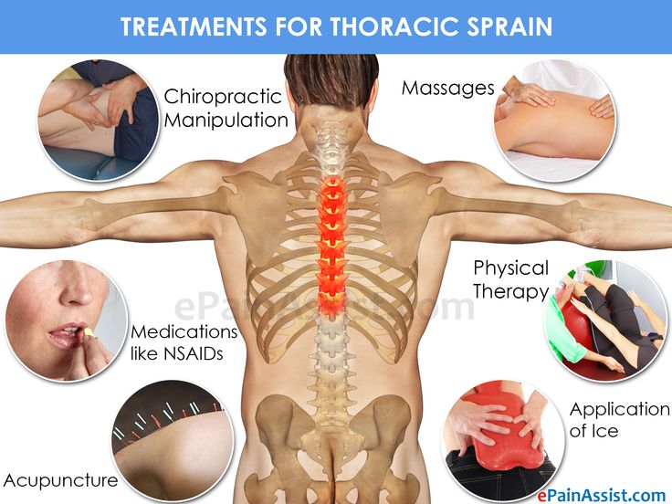 Treatments For Thoracic Sprain