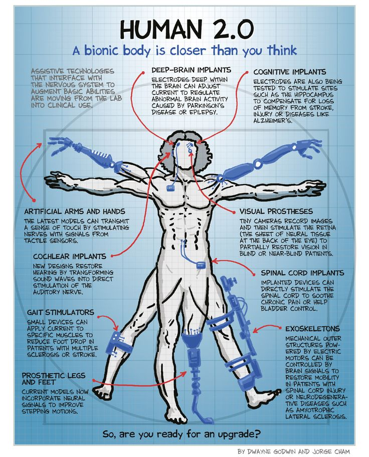 Human 2.0: Tech Upgrades for the Nervous System [Cartoon] A bionic body is closer than you think - Scientific American