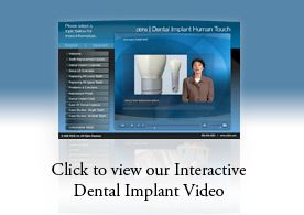 Dental implants are designed to provide a foundation for replacement teeth that look, feel, and function like natural teeth. The person who has lost teeth regains the ability to eat virtually anything and can smile with confidence, knowing that teeth appear natural and that facial contours will be preserved.