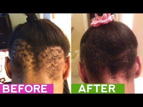 Natural Hair Stimulate Growth Products For Black Hair