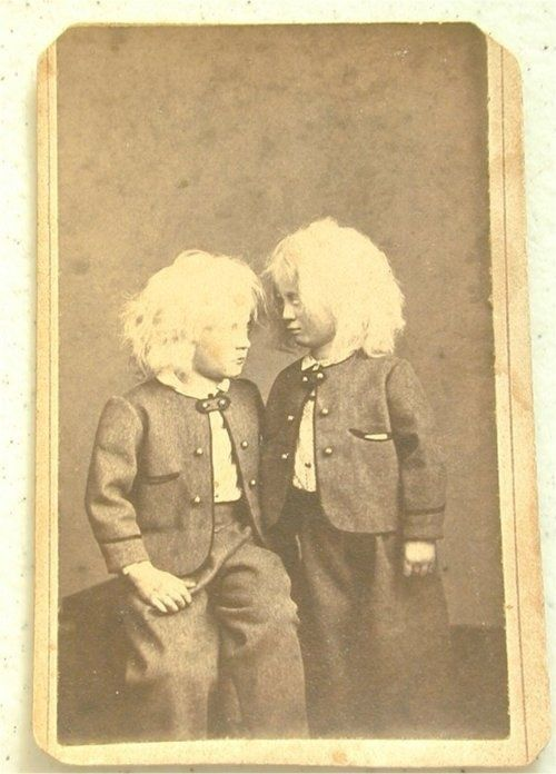 POSSIBLE post mortem photo of the twin on the right.  Stands were sometimes used to make the deceased seem alive.  The R. Twins skin is discolored, the eyes are lifeless, arm hangs at his side and theres an unnatural leaning to his stance, whereas his brother has turned his head and is glancing up at him with trepidation. Live Siblings and surviving twins were often posed with their deceased siblings for post mortem photos victorian-post-mortem-photography beauty