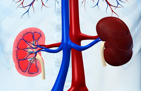 Read about chronic kidney disease (CKD) stages (4, 3, 2, and 1), symptoms, diet, treatment, signs, and diagnosis. Chronic kidney disease causes include diseases of the kidney(s), diabetes, uncontrolled high blood pressure, glomerulonephritis, polycystic disease, medications, and other conditions.