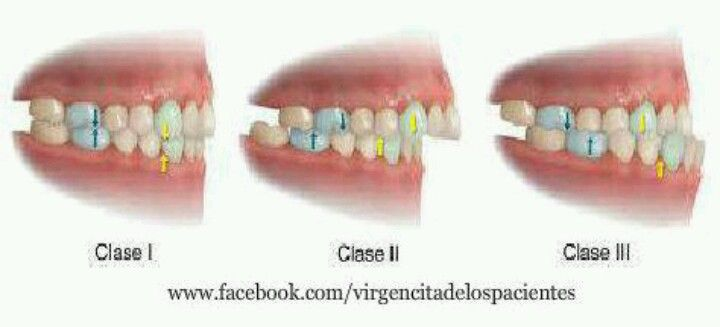 Occlusal Classes