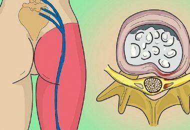 Los parásitos internos, como parásitos de sangre, coccidia y gusanos, viven dentro del cuerpo y se alimentan de sangre y comida, y son de varios tamaños.