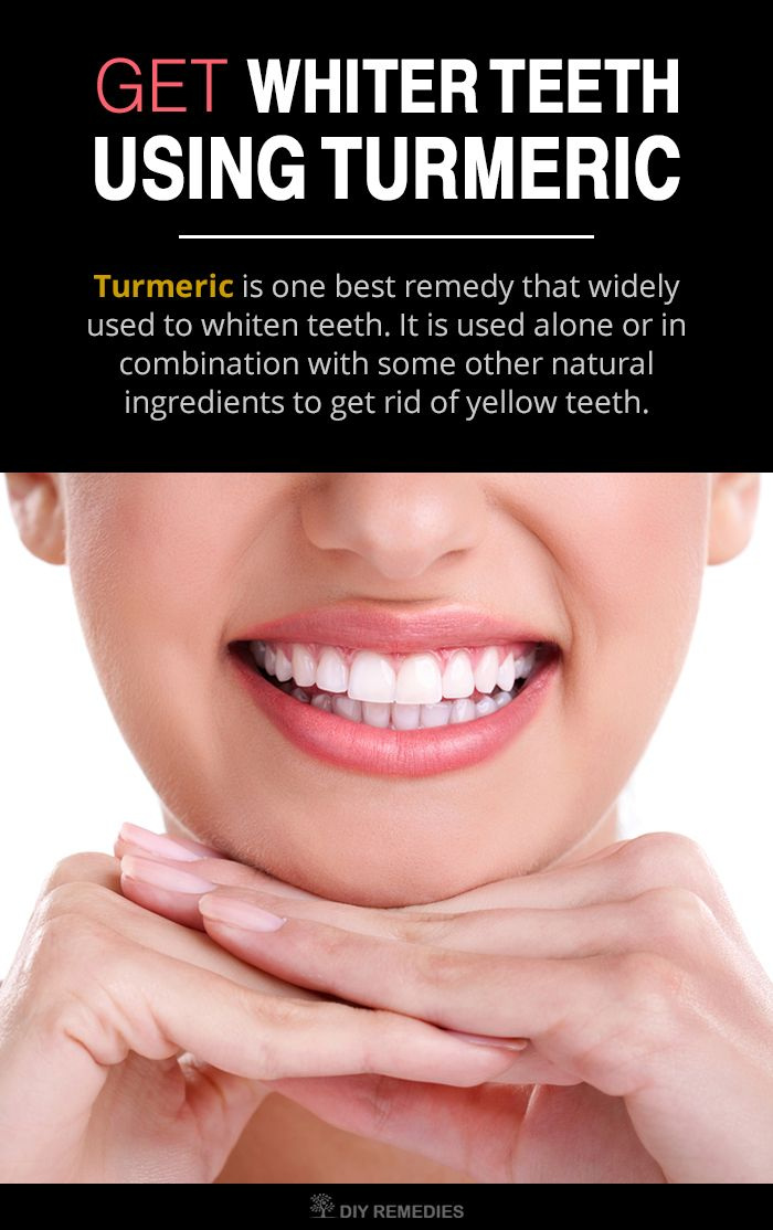 How to use Turmeric for Teeth Whitening:  Turmeric is one best remedy that widely used to whiten teeth. It is used alone or in combination with some other natural ingredients to get rid of yellow teeth.