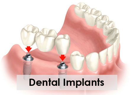 "A dental implant is a ""root"" device, usually made of titanium, used in dentistry to support restorations that resemble a tooth or group of teeth to replace missing teeth. Virtually all dental implants placed today are root-form endosseous implants (they appear similar to an actual tooth root), and are placed within the bone."