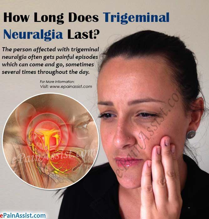 How Long Does Trigeminal Neuralgia Last?