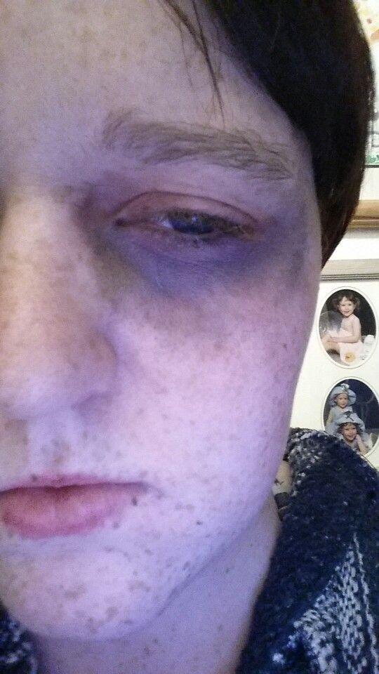 Black eye using assorted eyeshadows