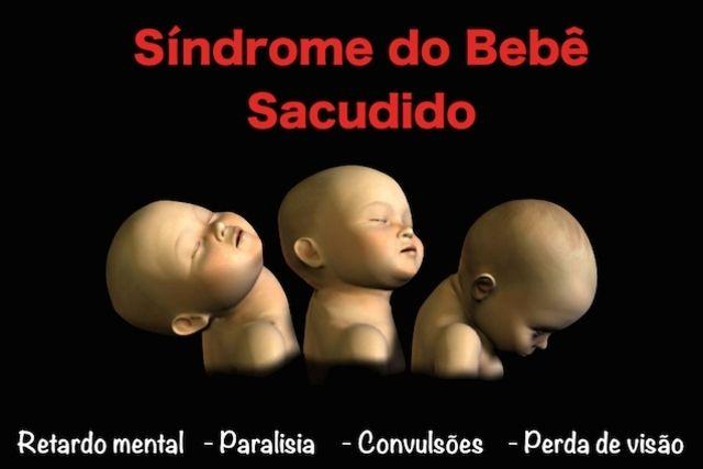 Sacudir o bebê ou fazer movimentos bruscos pode levar à Síndrome do Bebê Sacudido, que provoca lesões no cérebro da criança e sequelas graves. Veja...