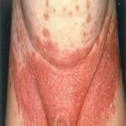 yeast infection pictures - Google Search