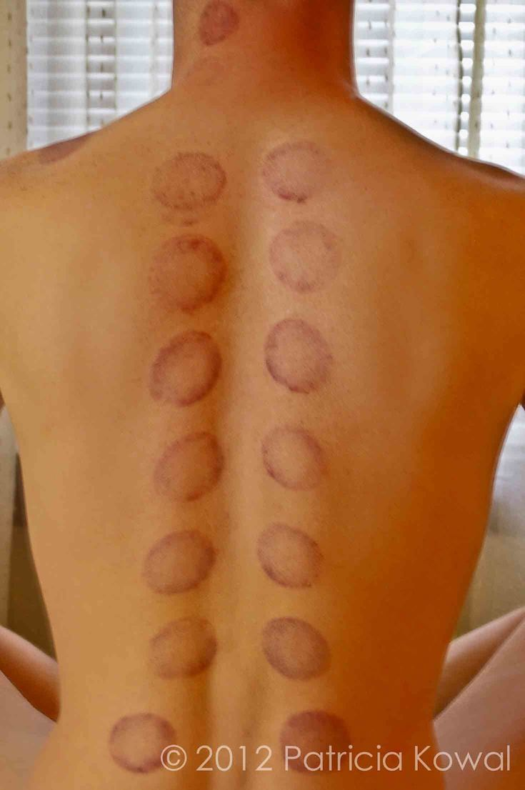 25 Best Ideas About Cupping Therapy On Pinterest