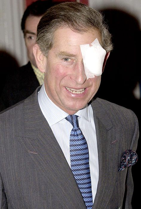 When royals suffer injuries from black eyes to broken bones – ouch! | Queen kate, Royal ...