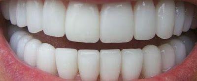 Θέλεις λευκά δόντια; Φτιάξε το πιο εύκολο λευκαντικό - ΘΕΡΑΠΕΥΤΗΣ