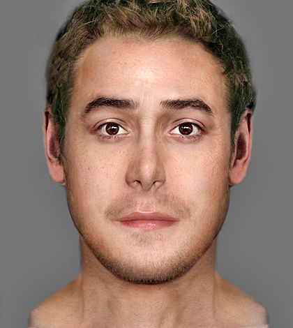 Pennsylvania facial reconstruction unit sergeantsville