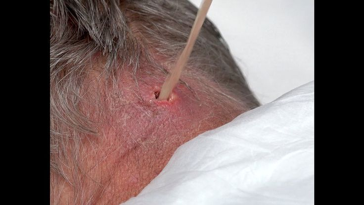 #Scalp_Neck_Abscess Final Follow-Up for Marathon Man!