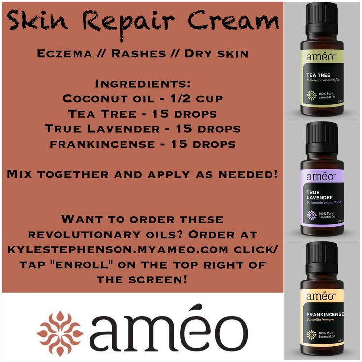 "Ameo Essential Oil Skin Repair Cream! Use for eczema, dry skin, skin irritations, rashes, and more! ~~ To order oils or become involved in this once in a lifetime opportunity go to www.healthyfamily4.myameo.com and click/tap the ""enroll"" button on the top right of the screen! ~~ Keywords: clinical grade, Zija, CERTI-5, natural, healthy, vegetarian, blends, frankincense, true lavender, tea tree"