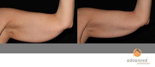 Zeltiq CoolSculpting Before and After Body Sculpting is a great alternative to liposuction or surgery.