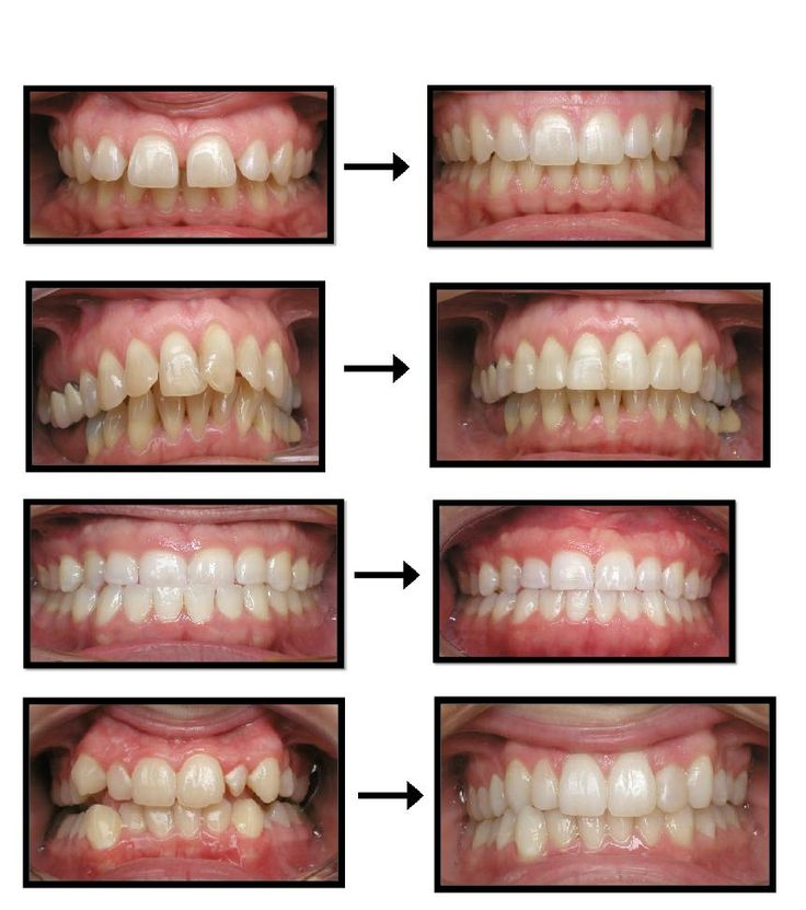 Invisalign clear braces before and after. http://www ...