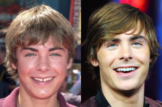 Zac efron cosmetic dental surgery for smile makeover